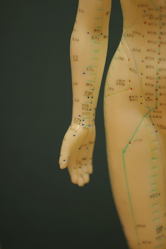 Female acupuncture model showing channels and acupuncture points
