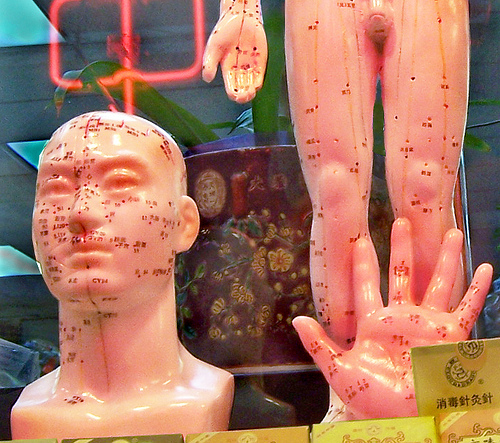 Men with fertility issues are also trying acupuncture these days